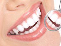 איך הפכה הלבנת השיניים לכל כך פופולרית?